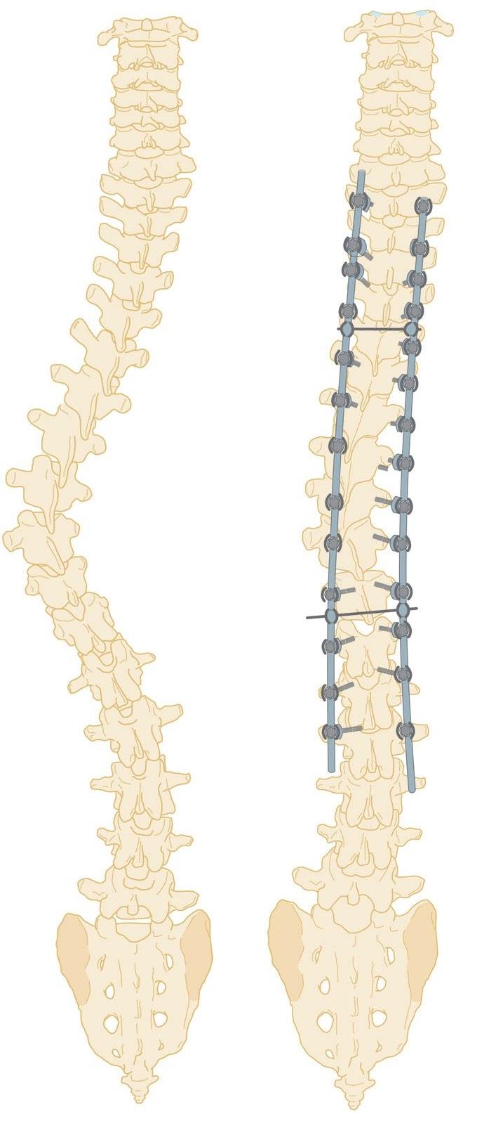 Scoliose lombaire : Le b.a-ba pour comprendre la scoliose chez l'enfant